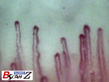 Sample picture of nailfold capillaries which was taken by the capillaroscope GOKO Bscan-Z