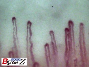 全身毛細血管スコープGOKO Bscan-Zで撮影した指先爪郭部の毛細血管