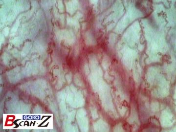 全身毛細血管スコープGOKO Bscan-Zで撮影した口唇の毛細血管
