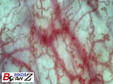 Sample picture of labial microvascular capillaries in lips which was taken by the capillaroscope GOKO Bscan-Z