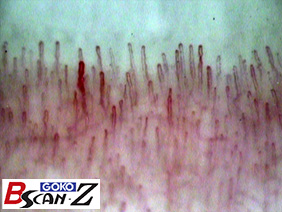 Nailfold capillaries which are magnified up to 145 times which was taken by the capillaroscope GOKO Bscan-Z