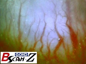 Blood vessels in gum (90×)
