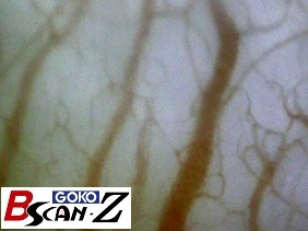 Blood vessels in gum (350×)