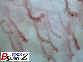 Upper gingiva capillaries which are magnified up to 560 times which was taken by the capillaroscope GOKO Bscan-Z