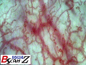 Lip capillaries which are magnified up to 150 times which was taken by the capillaroscope GOKO Bscan-Z