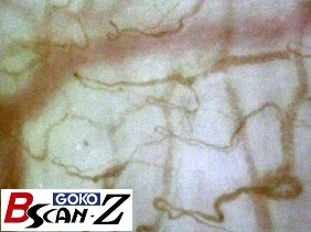 Lip capillaries which are magnified up to 560 times which was taken by the capillaroscope GOKO Bscan-Z