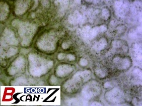 Mole and capillaries which are magnified up to 560 times which was taken by the capillaroscope GOKO Bscan-Z