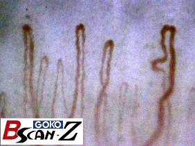 Nailfold capillaries which are magnified up to 590 times which was taken by the capillaroscope GOKO Bscan-Z