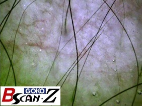 Scalp capillaries which are magnified up to 150 times which was taken by the capillaroscope GOKO Bscan-Z