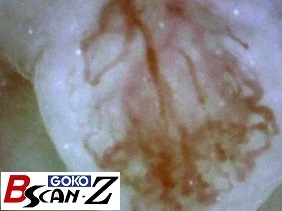 Tongue papillae capillaries which are magnified up to 560 times which was taken by the capillaroscope GOKO Bscan-Z