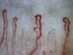 Clear picture of nailfold capillaries which was taken by the capillaroscope GOKO Bscan-Z