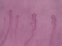 Indistinct picture of nailfold capillaries which was taken by a traditional capillaroscope