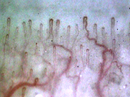 Sample picture of nailfold capillaries which magnified up to 100 times which was taken by the capillaroscope GOKO Bscan-Z