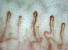 Sample picture of nailfold capillaries which magnified up to 410 times which was taken by the capillaroscope GOKO Bscan-Z